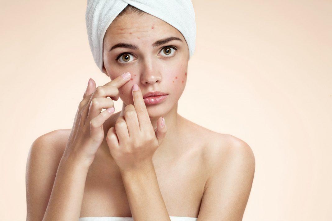 Как акне на лице рассказывают о вашем здоровье?